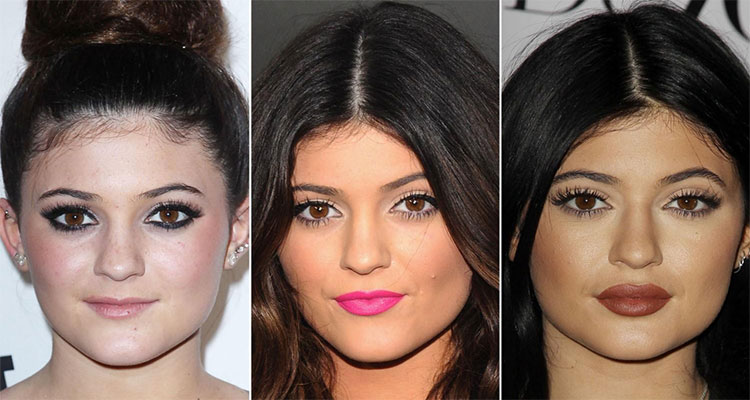 Photographs of Kylie Jenner comparing different looks of her that changed with time
