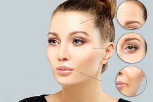 Should I Get Botox 5 Key Questions to Ask Before Getting Botox