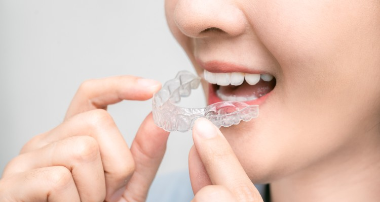 Things to know before you get Invisalign