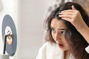 The Ins and Outs of Alopecia