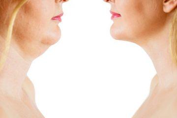 9 Effective Ways to Combat Sagging and Slackening Skin
