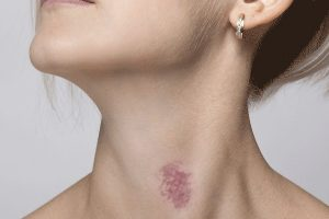 How to Get Rid of Hickies In Easy Steps!