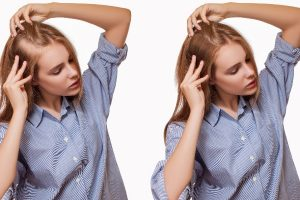How Does Hair Transplantation Work?