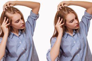 How Does Hair Transplantation Work?