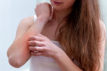 Psoriasis and Its Treatment