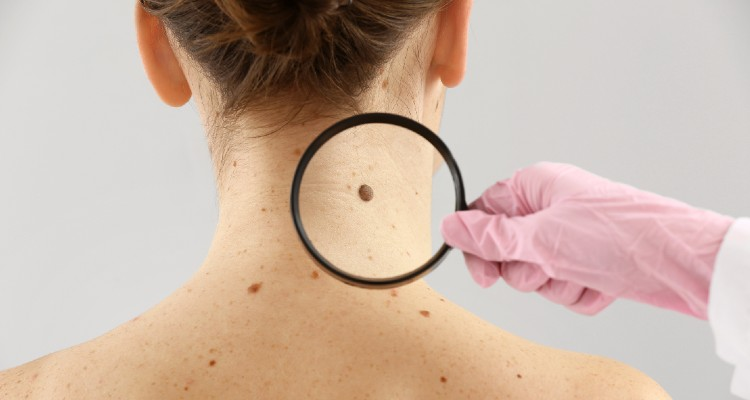 5 Signs It Might Be Time To Check Out That Mole