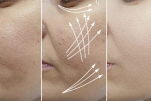 Check Out the Best Face Fillers in 2021