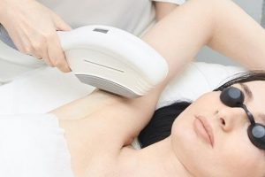 5 Types of Laser Hair Removal Treatments for Women