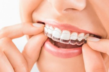 5 Reasons To Consider Clear Aligners For Your Teeth